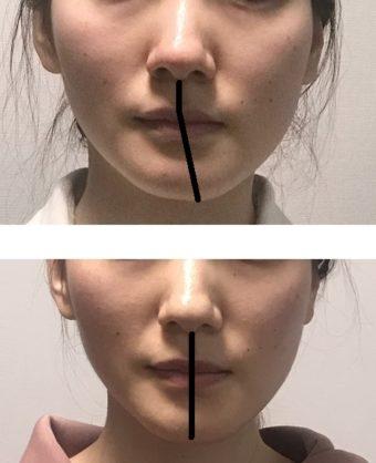 歯科で顔ドック ひどい顔の歪みが治った 正中線入り