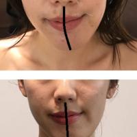 顎変形症をコルギで治す