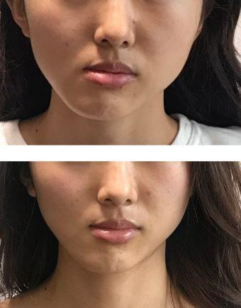 痛くないコルギ 顔の歪み 顎の歪み